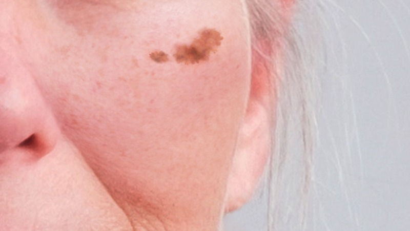 チェルスキン 肝斑 保険適用